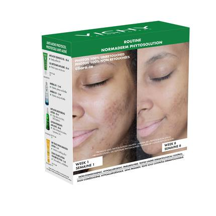 NORMADERM CORRECTIVE ANTI ACNE TREATMENT KIT